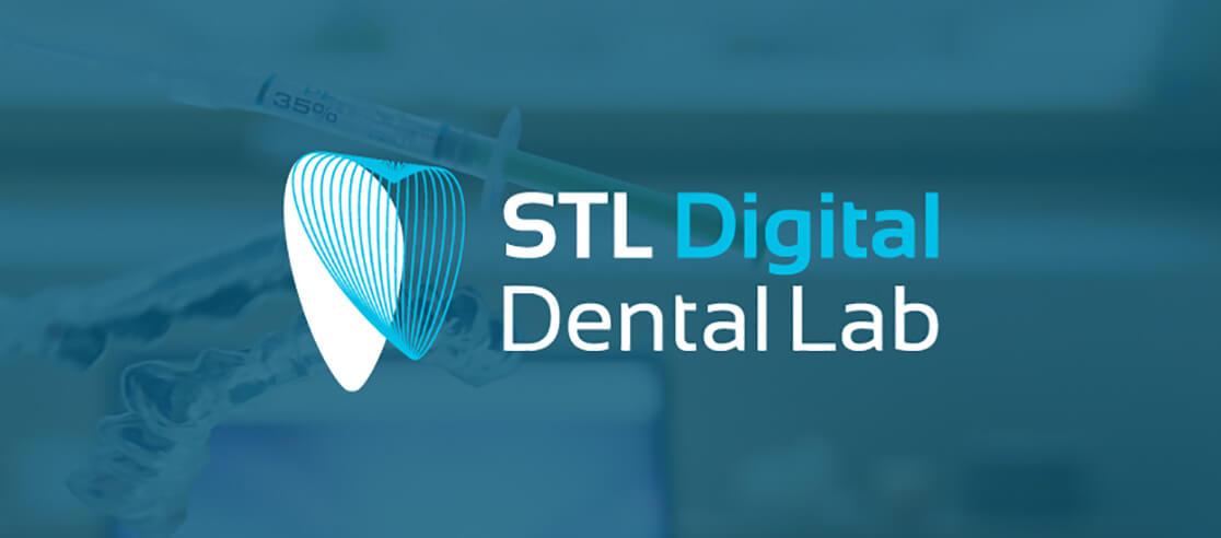 STL digital Dental lab